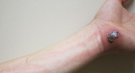 Cellulitis on Arm