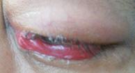 Cellulitis on Eye
