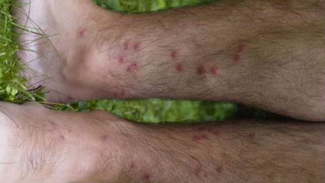 cercarial dermatitis symptoms treatment and more