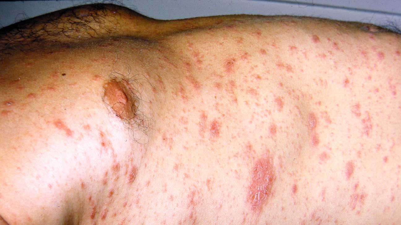 Pityriasis Rosea Christmas Tree Rash Pictures Causes