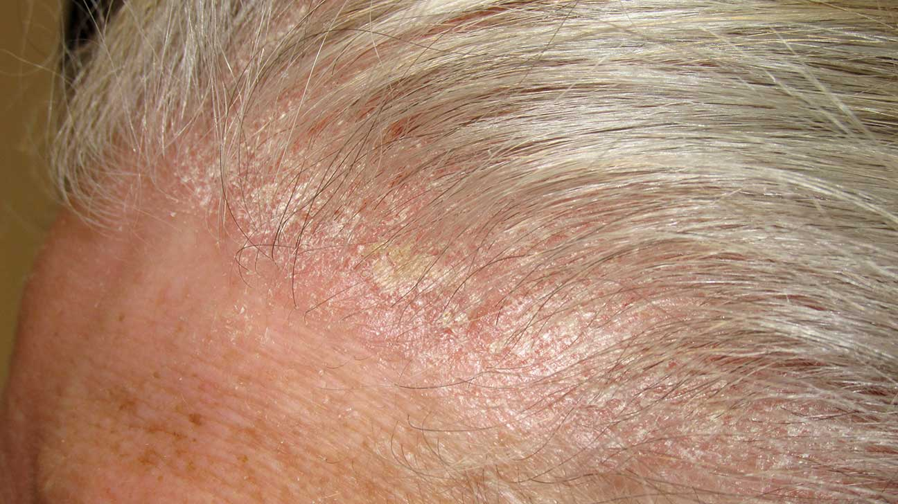 photo Dry Scalp and Dandruff: Whats Causing Those Flakes