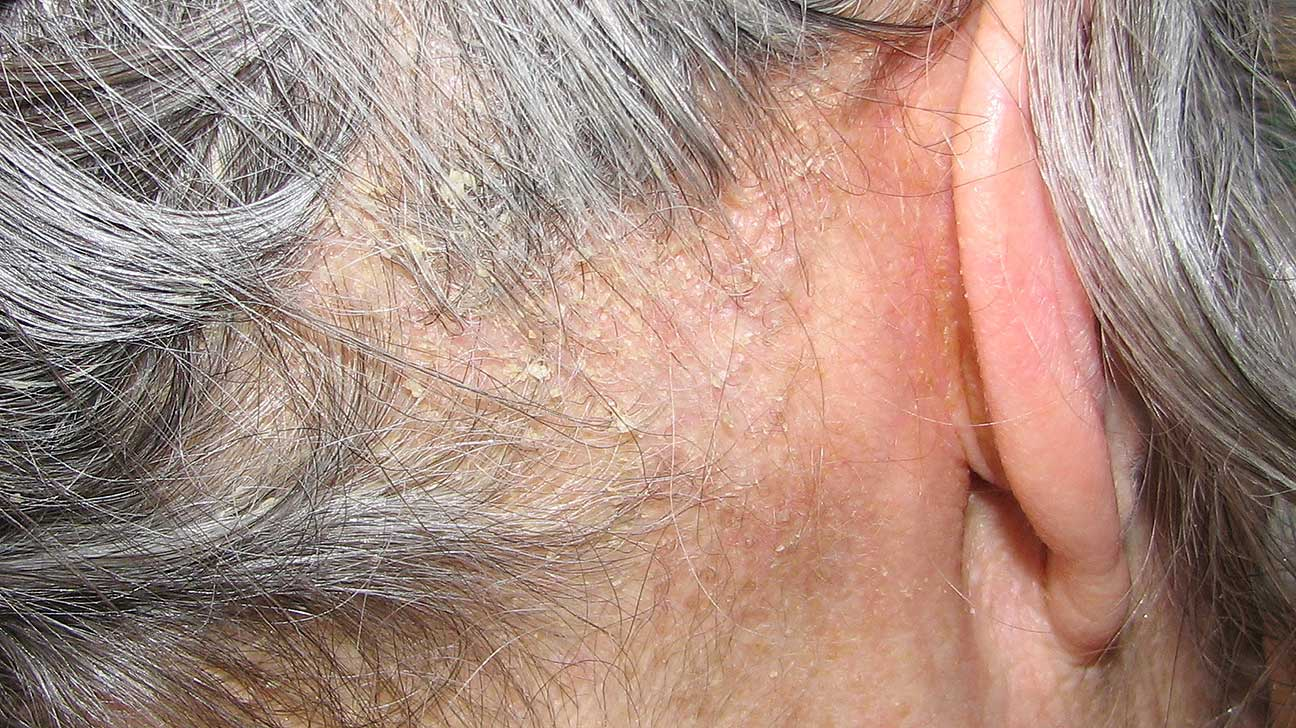 Dry Scalp and Dandruff: Whats Causing Those Flakes pictures