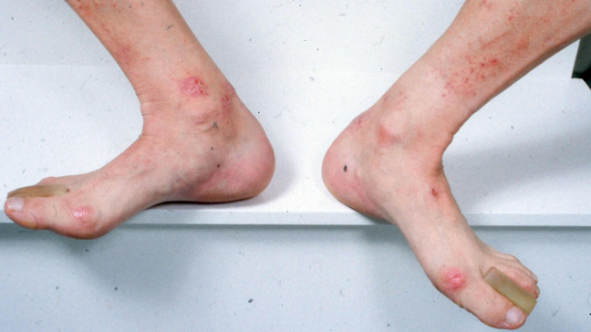 Dermatitis herpetiformis and pictures