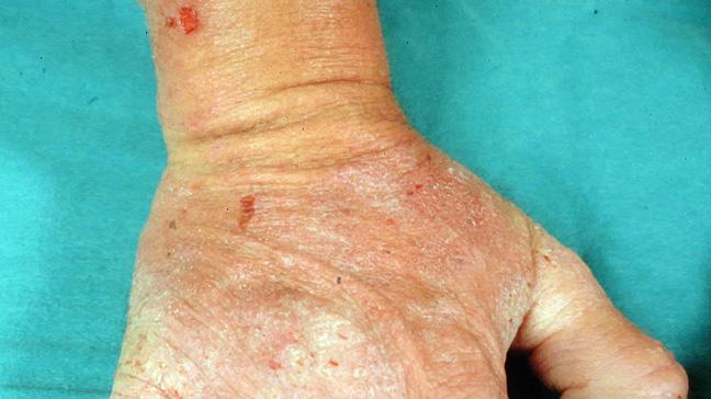 Home Remedies For Dermatitis Herpetiformis