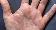 Dyshidrotic Eczema on Hand