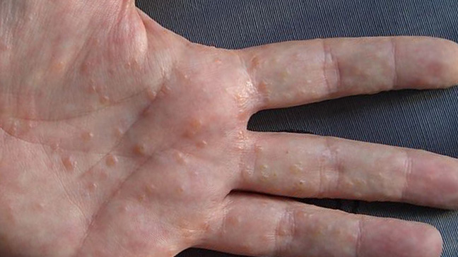 Image result for wikipedia pic of allergy in finger