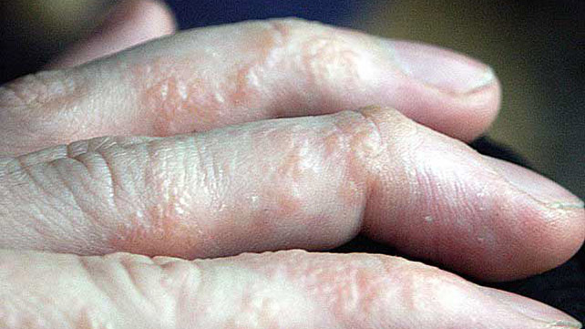 Types of Eczema: Identification, Pictures, and More