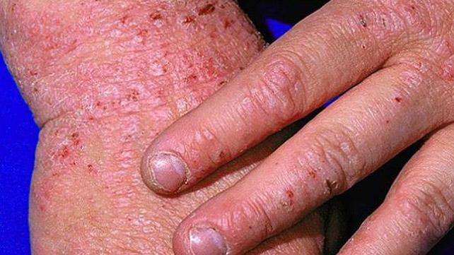 types of eczema: identification, pictures, and more, Skeleton