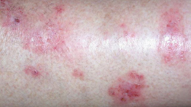 rash eczema skin rings circular ringworm not