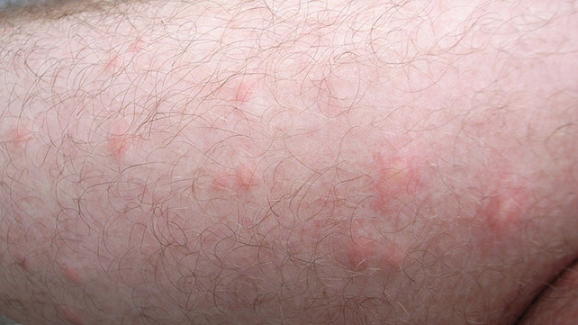 Fly Bites Symptoms And Treatments