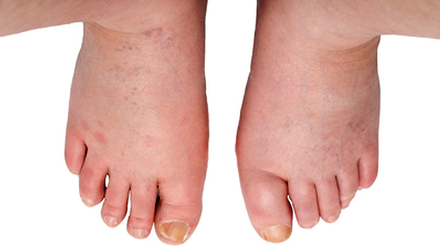 how to bring down swelling in feet