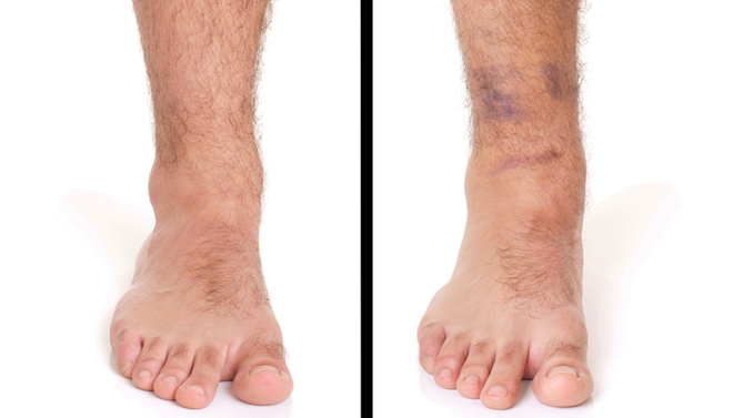 swollen ankle and leg causes, treatments, and more, Skeleton