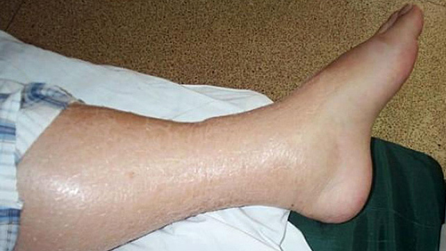 Swelling In Feet And Lower Legs 95