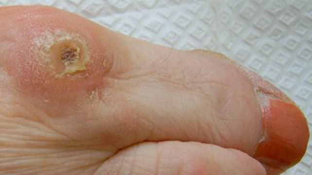 how to get rid of corn on base of foot