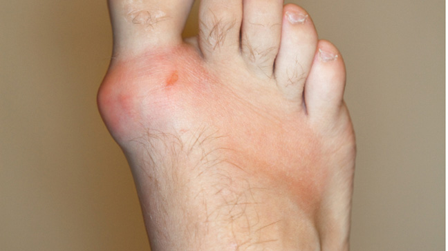 Gout  Overview  U0026 Causes