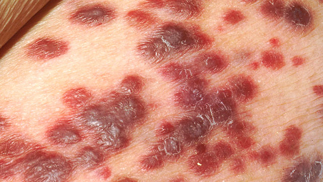 rashes and skin conditions associated with hiv/aids, Skeleton