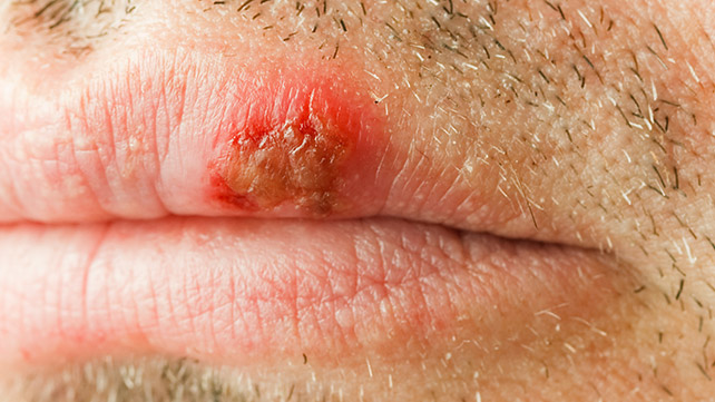 What Do HIV Mouth Sores Look Like? - Healthline