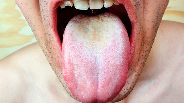 Cold sore (herpes simplex virus) - NHS Choices