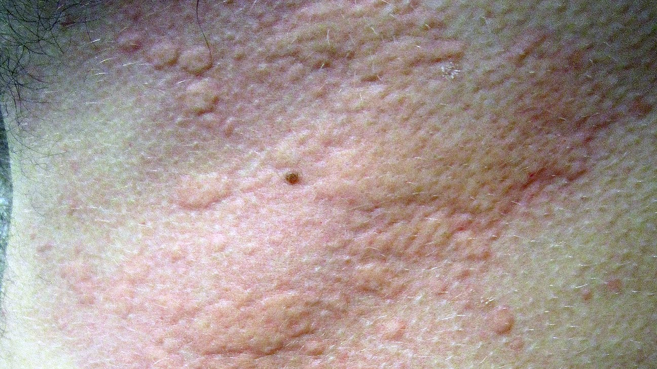 Is it hives or psoriasis learn the signs buycottarizona Image collections