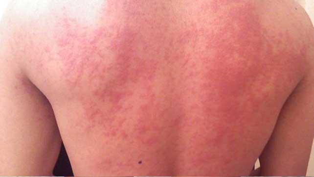 opgezwollen gezicht allergie