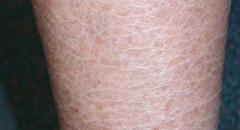 what causes extremely dry skin