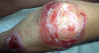 Impetigo on Knee