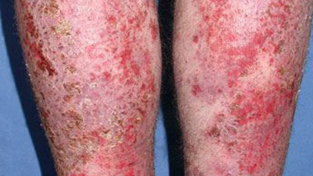 infected eczema: pictures, treatment, removal, and more, Skeleton