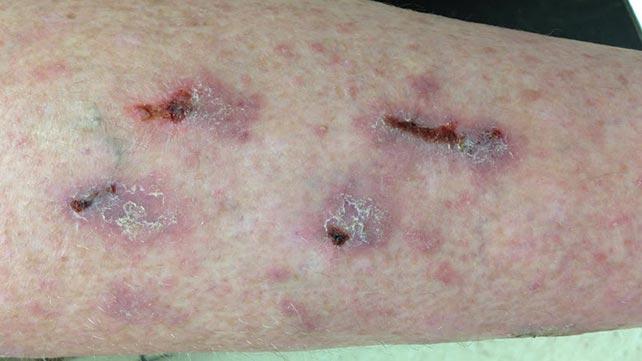 lichen ruber planus symtom