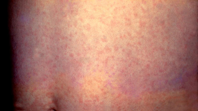 Symptoms, treatment and symptoms of measles in adults
