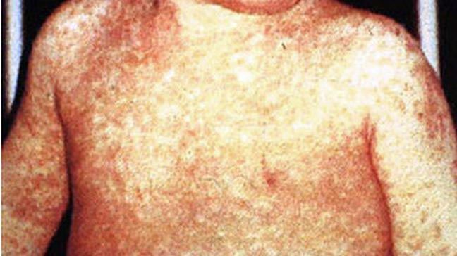 measles - photo #3