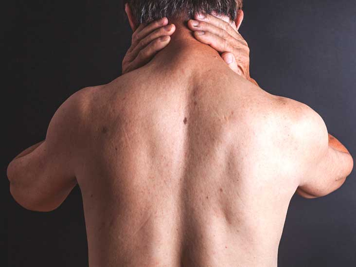 Causes of meningitis in men causes of meningitis in men Causes of meningitis in men 3308 man neck pain 732x549 thumbnail