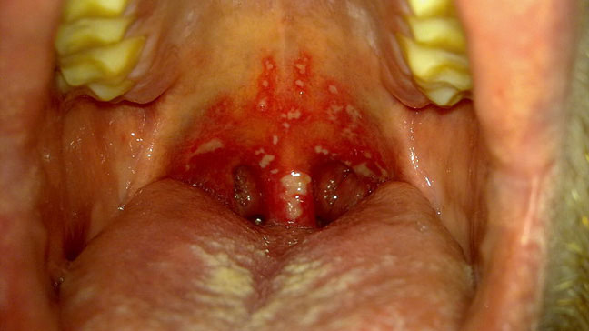 Mouth hiv inside white on cheeks spots