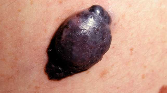 pictures of nodular melanoma, Human Body