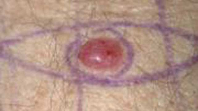 Pictures Of Nodular Melanoma