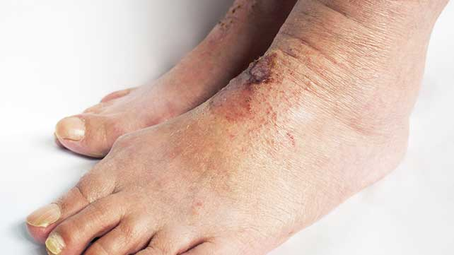 Are rashes associated with menopause  Jill scott insomnia