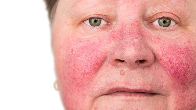 What causes rash on skin