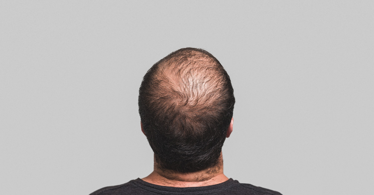 PRP for Hair Loss: Efficacy, Safety, and Cost