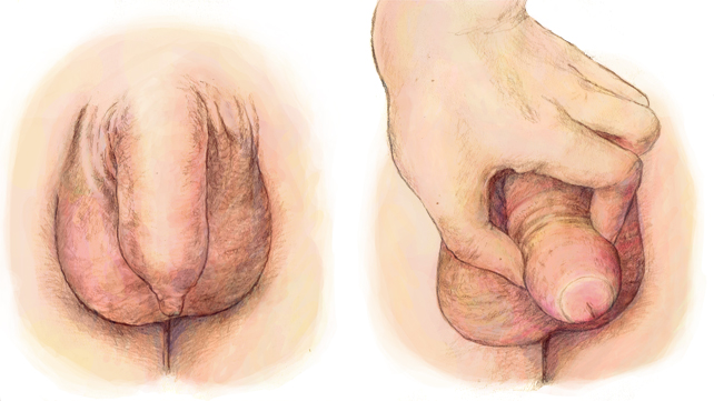 Tip of the penis pain