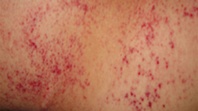 Petechiae Causes Treatments Pictures And More