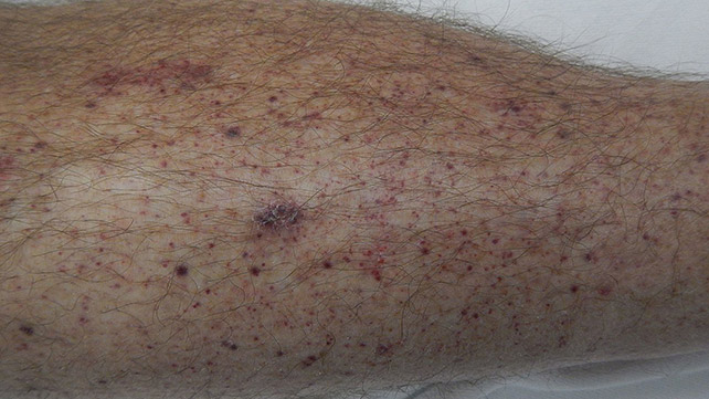 petechiae: causes, treatments, and more, Human Body
