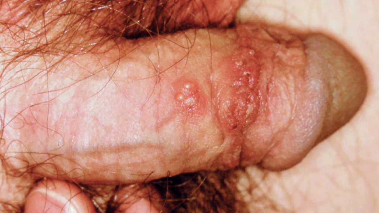 Is ringworm a sexually transmitted disease
