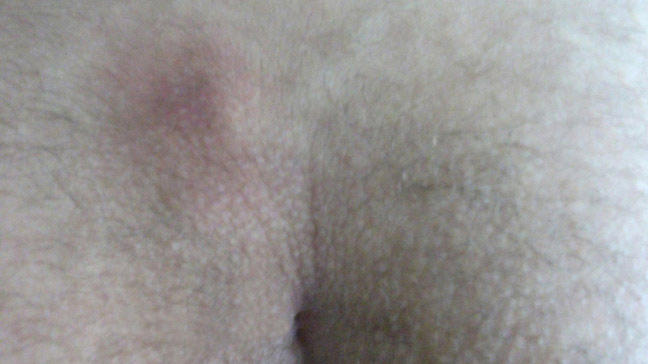 Sinus pilonidalis (haarnestcyste) - huidziekten.nl