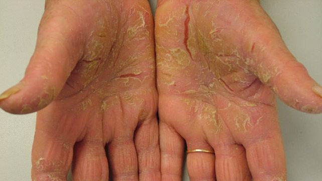 psoriasis palms of hands wwwpixsharkcom images