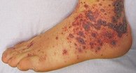 Purpura Vasculitis on Lower Legs