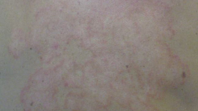 Picture of Ringworm - WebMD