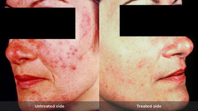 Rosacea red bumps