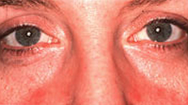rosacea in eyes
