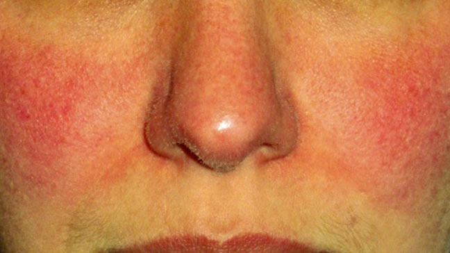 rosacea on nose #10