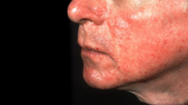 Pictures Of Rosacea 91