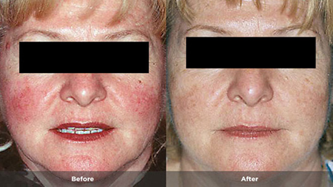 Situation familiar Treatment information facial rosacea you tell
